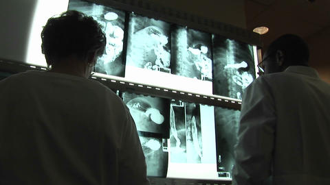 Medical professionals evaluate x-rays on a wall light box Stock Video Footage