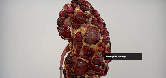 Kidney 3D Model