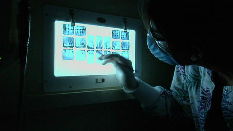 A dental worker looks at x-rays in a darkened room Stock Video Footage