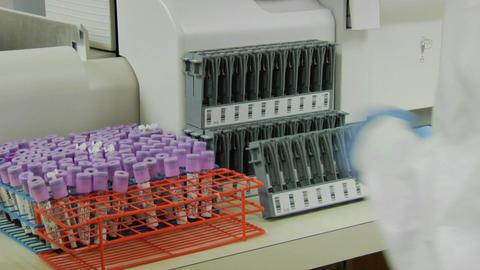 A medical technician places specimen vials into a rack Stock Video Footage
