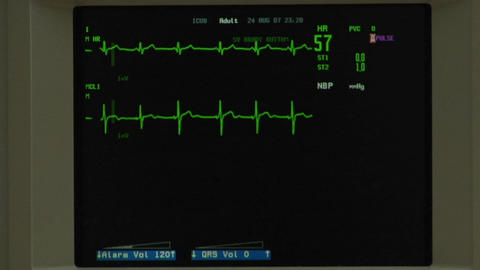 A normal EKG appears on a screen Footage