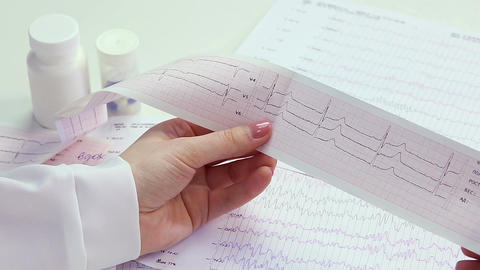 Cardiologist studying patient's heart activity, examining electrocardiogram, EKG Footage