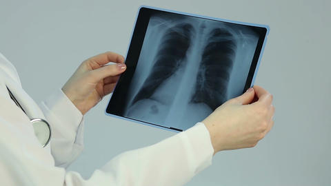 Doctor looking at pathology on chest x-ray, diagnosing patient with lung cancer Footage