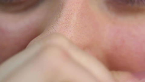 Person having allergy and rubbing nose. Health problems. Close-up view Live Action