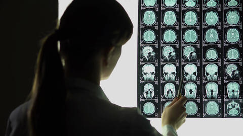 Neurosurgeon analyzing brain x-ray, blood vessels problems, incurable illness Footage