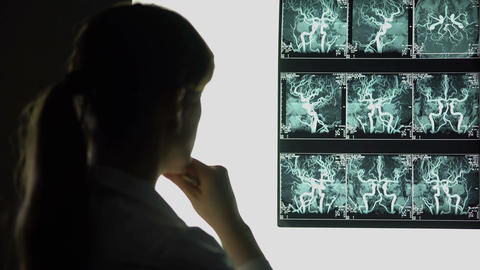Neurosurgeon examining blood vessels x-ray, making diagnosis, patient treatment Footage