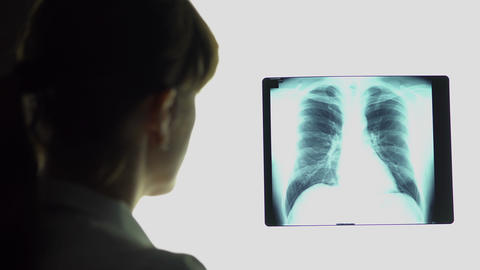 Pneumonia, therapist analyzing lungs x-ray image, making conclusions, healthcare Footage