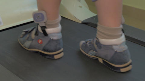 Close up view of small boy feet on treadmill in the special orthopedic bandage a Footage