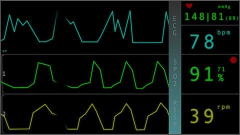 4 K Operation Monitor 2 flat signal Stock Video Footage