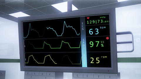 4 K Operation Room EKG Monitor 2 Animation