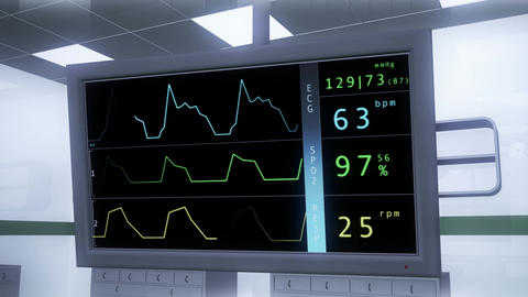 4 K Operation Room EKG Monitor 2 Stock Video Footage