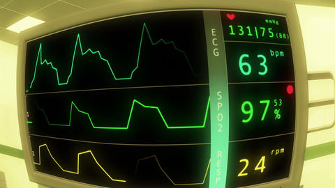 4 K Operation Room EKG Monitor 4 Stock Video Footage
