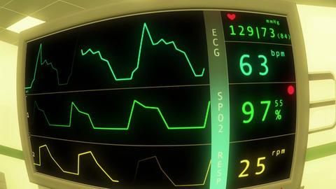 4 K Operation Room EKG Monitor 4 Stock Video Footage