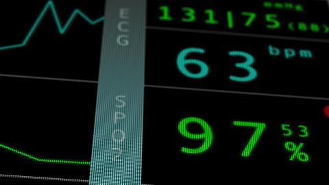 Operation Monitor Flat Signal Macro 1 Stock Video Footage