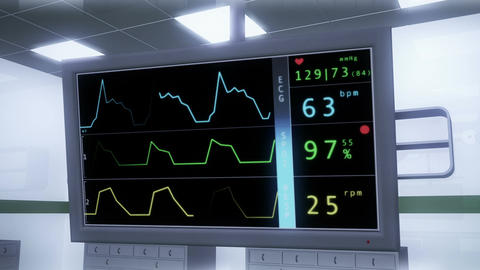 Operation Room EKG Monitor 2 Animation