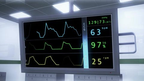 Operation Room EKG Monitor 2 Stock Video Footage