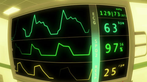 Operation Room EKG Monitor 4 Stock Video Footage