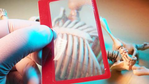 Human Skeleton Footage