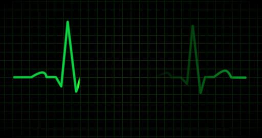 EKG or ECG line in green Footage