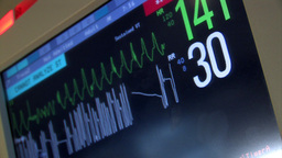 A heart monitoring station. In warning mode Stock Video Footage