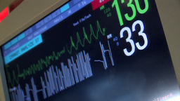 A heart monitoring station. In warning mode Footage