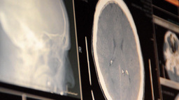 MRI scan 2 Stock Video Footage