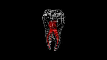 Tooth... Stock Video Footage