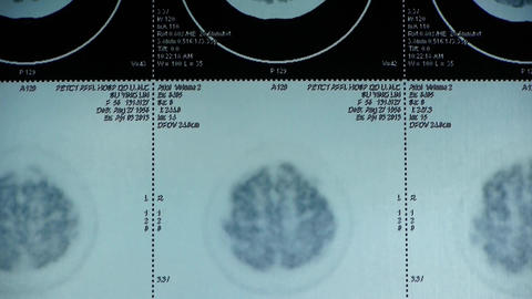 moving head pet cT scan,skull brain X-ray Stock Video Footage