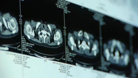 human subclavian pet-ct scan,lymph nodes X-ray,Cancer... Stock Video Footage
