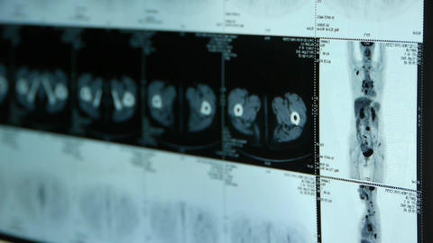 doctor study human orage & bone pet-ct... Stock Video Footage