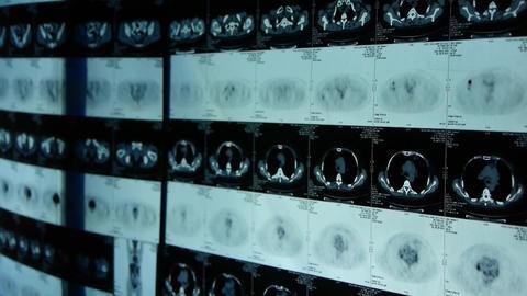 doctor study human orage & bone pet-ct... Stock Video Footage