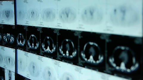 human orage pet-ct scan,medical X-ray,Cancer metastasis Stock Video Footage