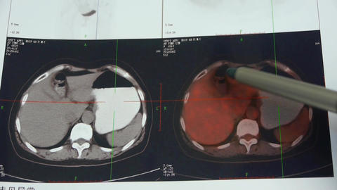 doctor study color stomach pet-ct scan,human organ X-ray... Stock Video Footage