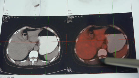 doctor study color stomach pet-ct scan,human organ X-ray radiography Footage