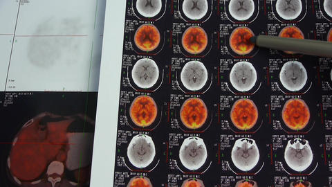 doctor study color head pet-ct,skull brain X-ray Footage