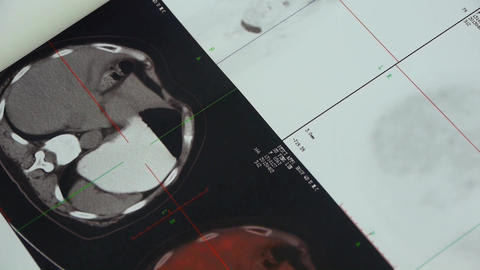 doctor study color head & organ pet-ct,Cancer metastasis Footage