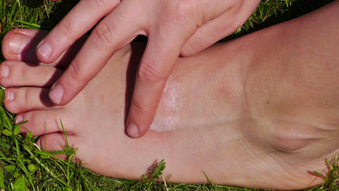 Lubrication of the foot after insect bite Stock Video Footage