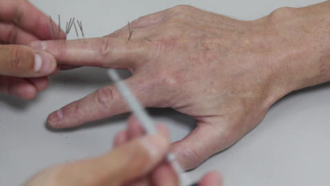 Acupuncture Footage