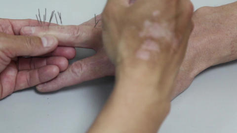 Acupuncture Stock Video Footage