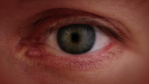 The aging eye. Close-up Stock Video Footage