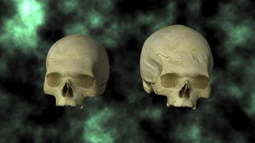 Hydrocephalic Human Skull Animation, top view on B Stock Video Footage