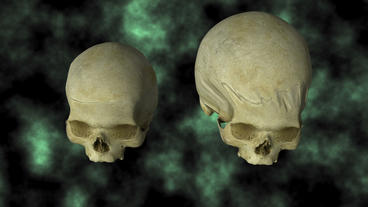 Hydrocephalic Human Skull Animation, top view on B Stock Video Footage