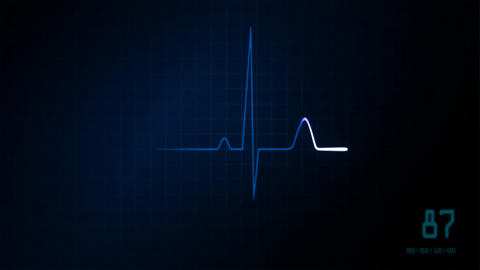 EKG monitor blue graphic Stock Video Footage