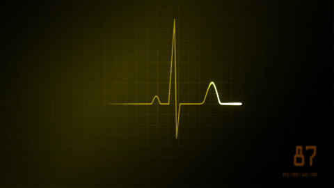 heart on an EKG monitor yellow Stock Video Footage