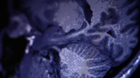 MRI scan on computer monitor Stock Video Footage