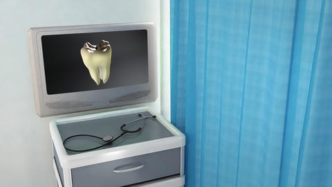 bad tooth to white tooth medical screen Stock Video Footage