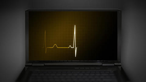 EKG monitor money graphic Stock Video Footage