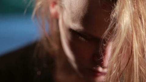 Bruises on forehead domestic violence Stock Video Footage