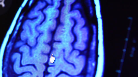 MRI scan Footage
