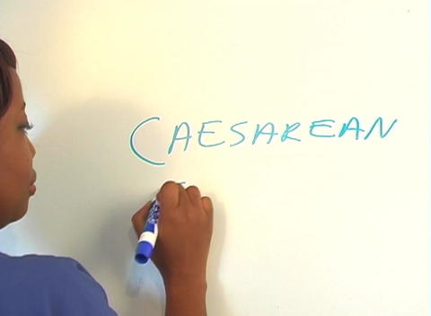 "Beautiful Nurse Writes ""Caesarean Section"" on a White Board (close-up) Footage"